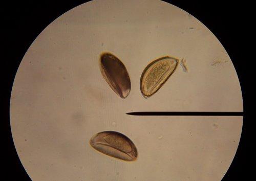 Pinworm Eggs In Poop